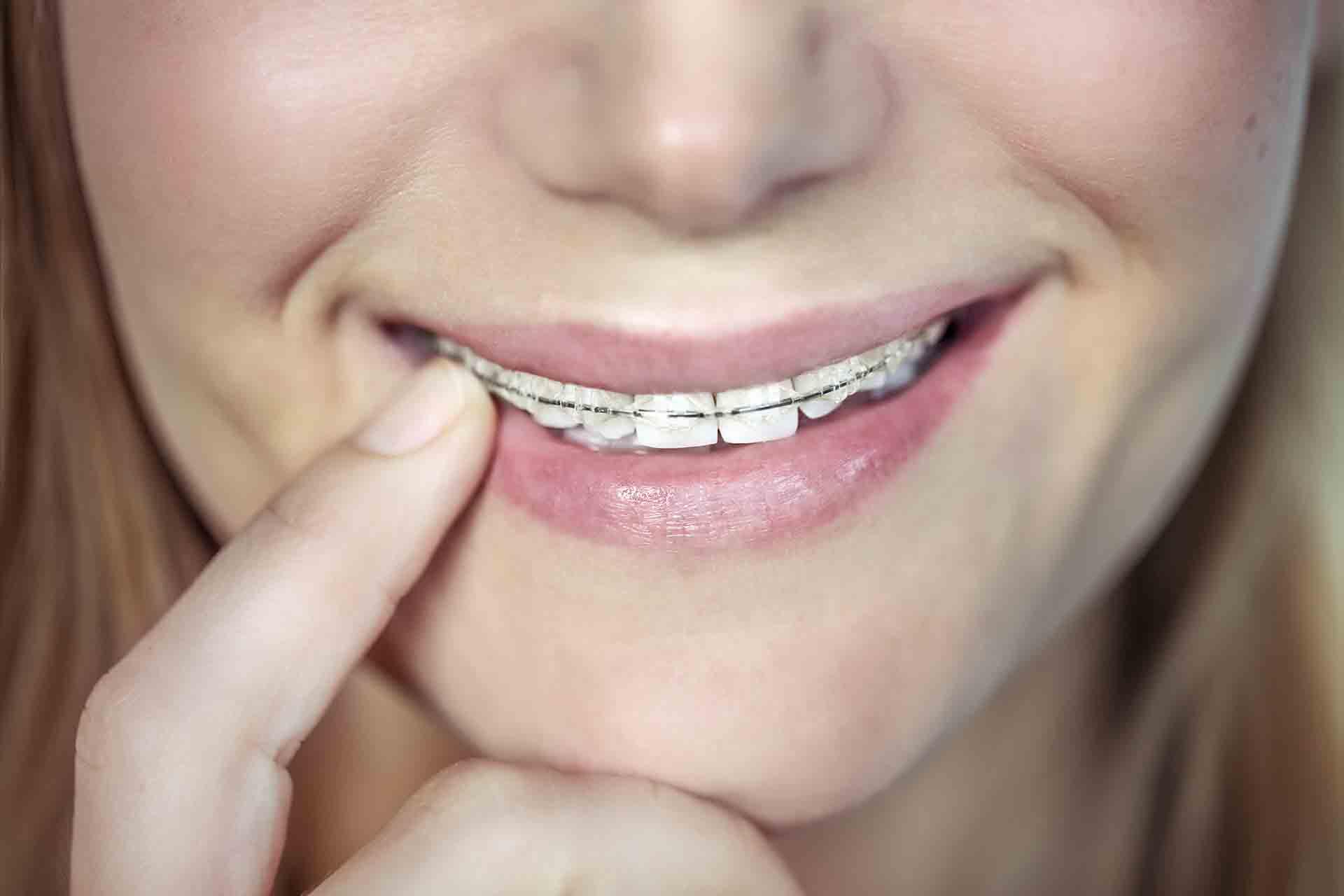 """I denti possono """"tornare storti""""?"""