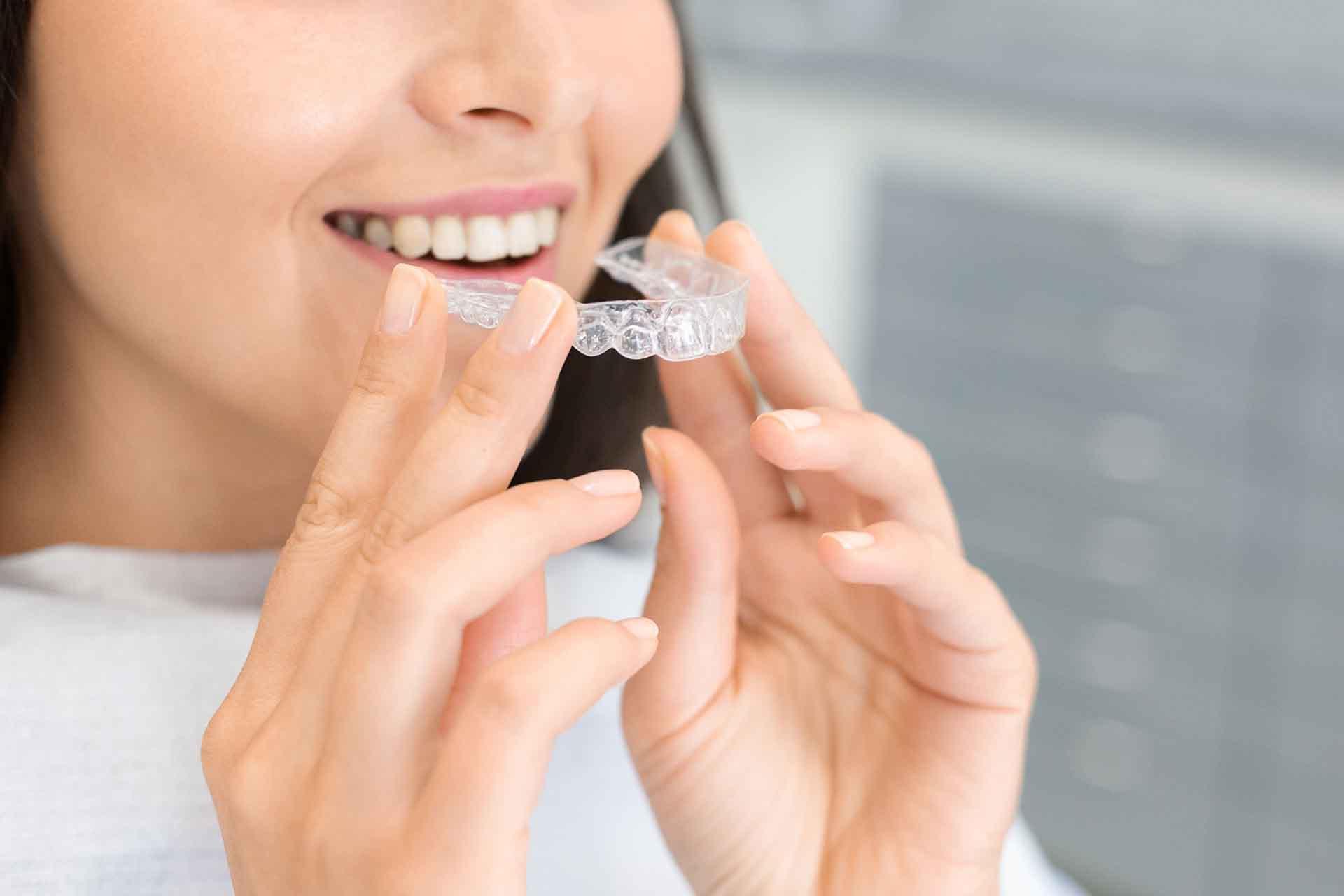 Ortodonzia invisibile: vantaggi e limiti